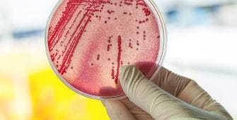 Coliform-Bacteria-ecoli-drinking-water