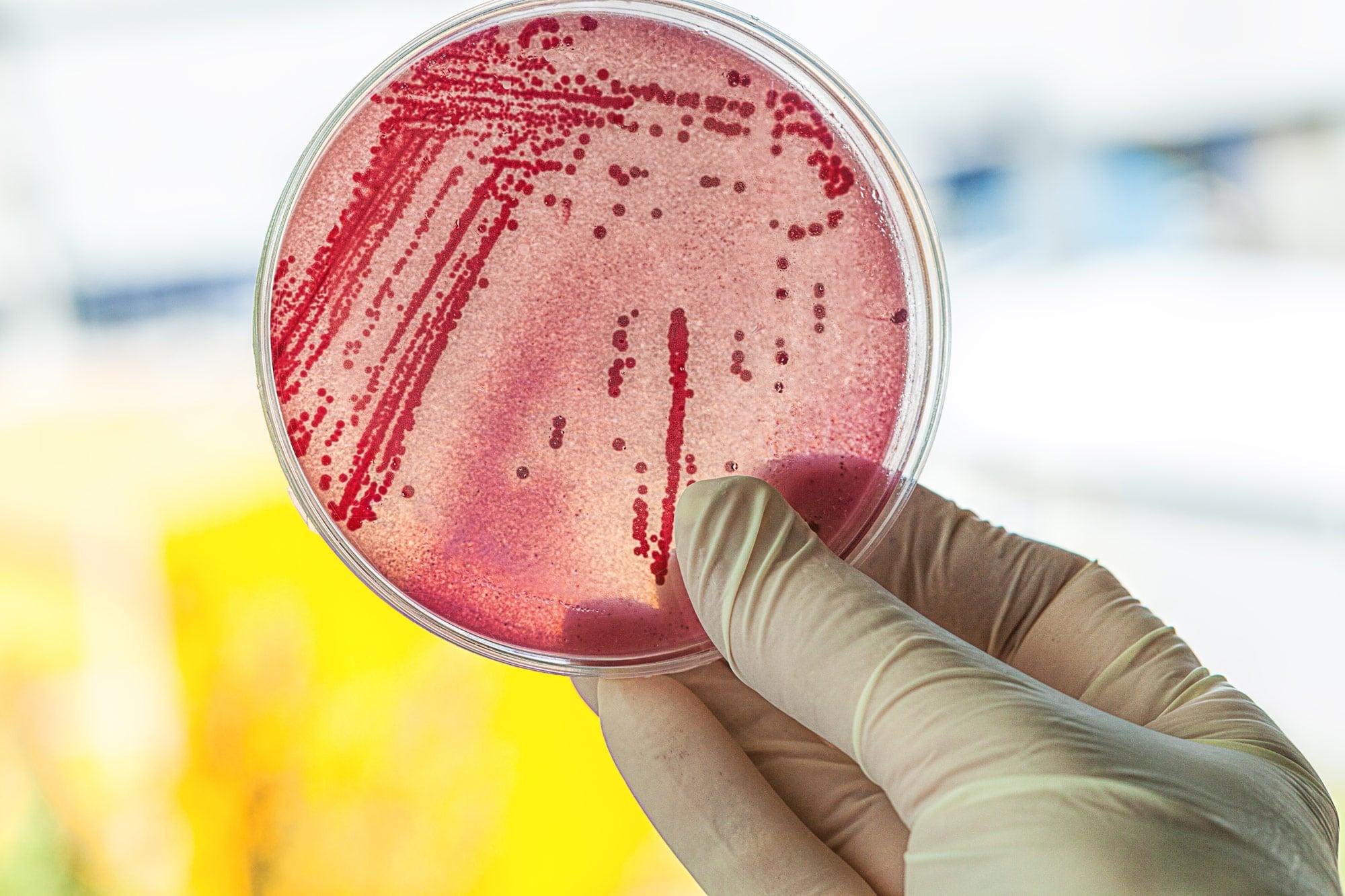 Coliform-Bacteria-ecoli-drinking-water